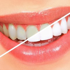 The Most Popular Cosmetic Dental Treatments