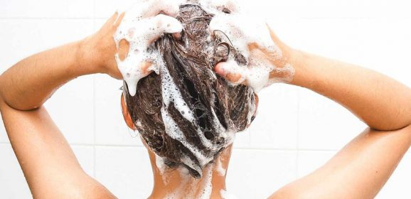 What Causes Dandruff? Tips to Manage a Flaky Scalp